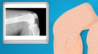 Operate Now! Knee Surgery - online game | Mahee.com