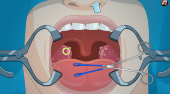Operate Now! Tonsil Surgery